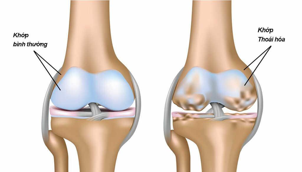 can tay collagen hỗ trợ xương khớp